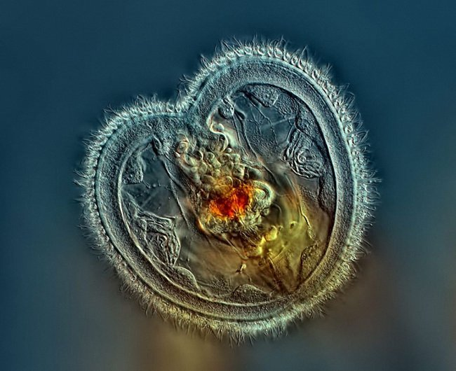 20 фотографий победителей Nikon Small World Photomicrography Competition
